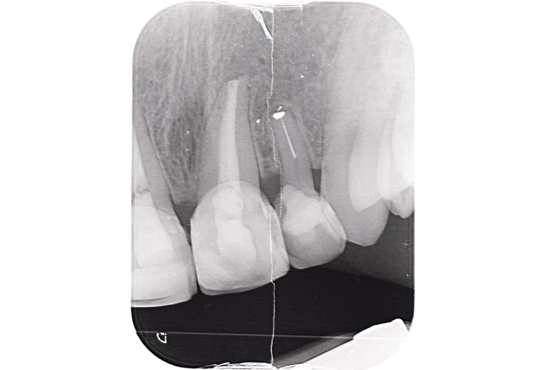 Delayed implant placement and horizontal GBR using cerabone® and Jason® membrane - Dr. S. Pelekanos