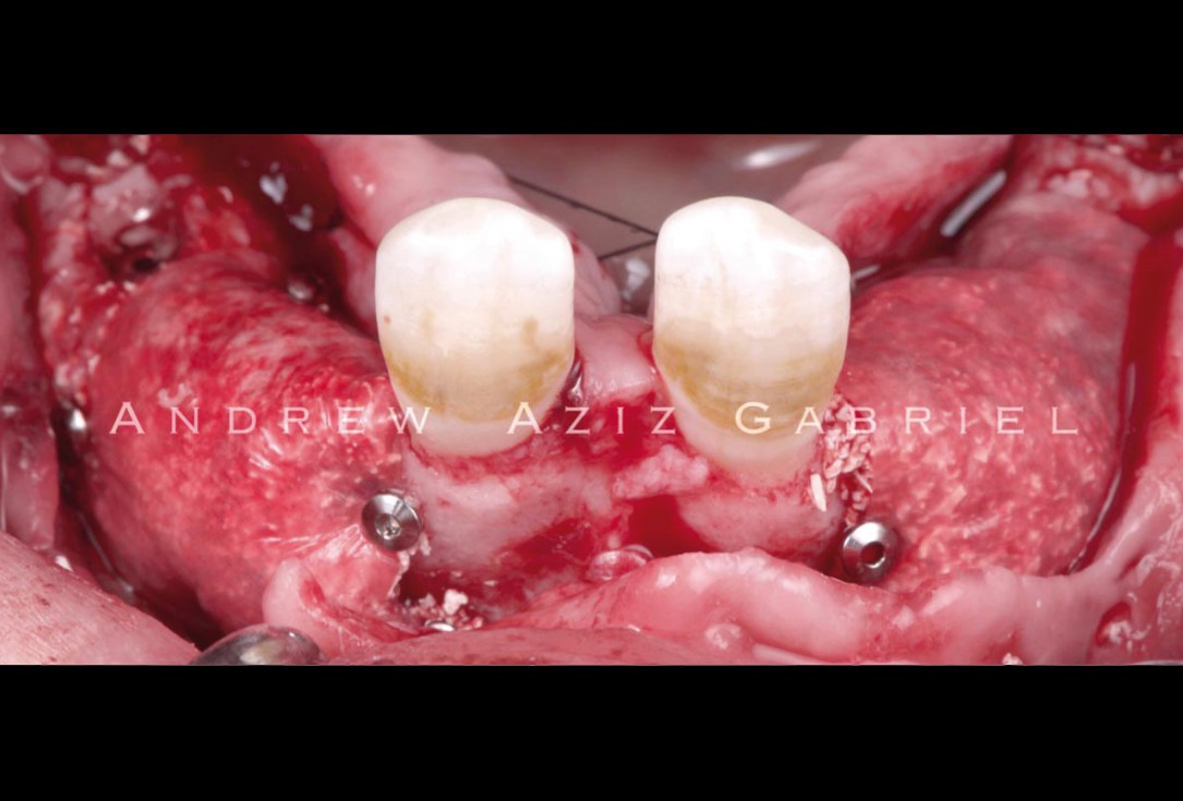 Horizontal/vertical GBR using cerabone®/maxgraft®, Jason® membrane/collprotect® membrane and Ti-mesh - Dr. A. Aziz