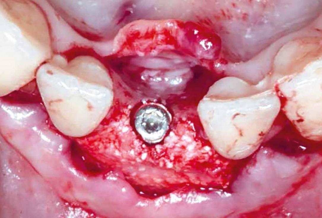 Horizontal GBR in the anterior mandible - Dr. B. Molnar