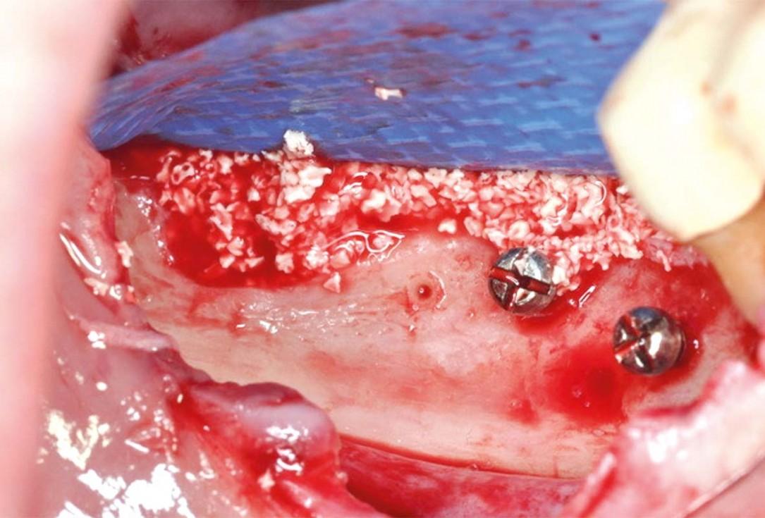 Vertical and horizontal GBR using permamem®, cerabone® and autologous bone - Dr. D. B. Hangyasi