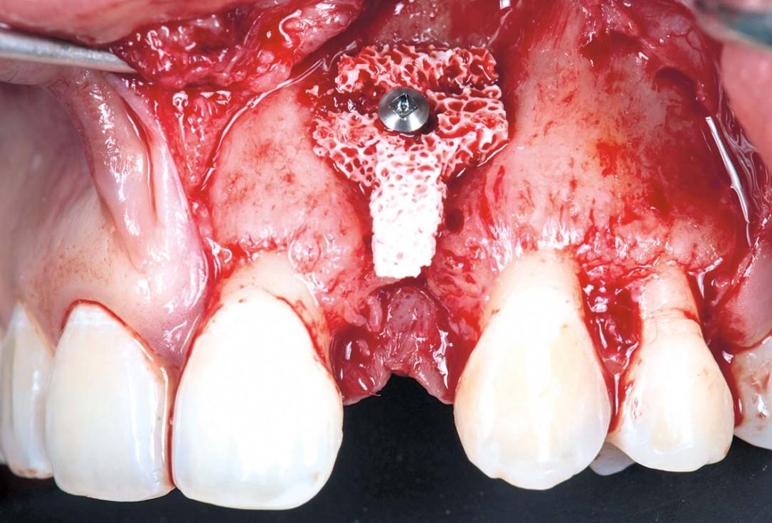 Horizontal ridge augmentation using cerabone® block, permamem® and Jason® membrane - Dr. P. Lázaro