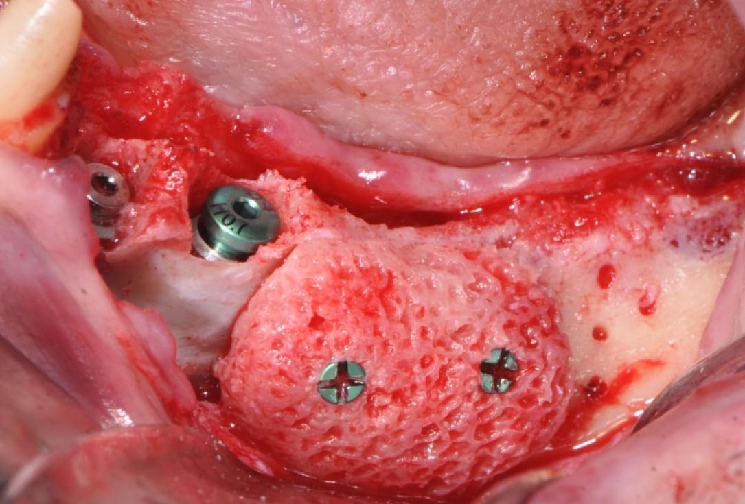 botiss maxgraft® bonebuilder & collprotect® membrane for ridge augmentation - Clinical case by Dr. V. Kalenchuk