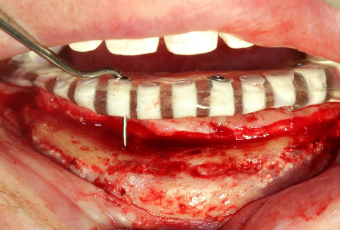 Block augmentation with maxresorb®, collprotect® membrane & autologous bone blocks - Prof. Dr. Dr. D. Rothamel