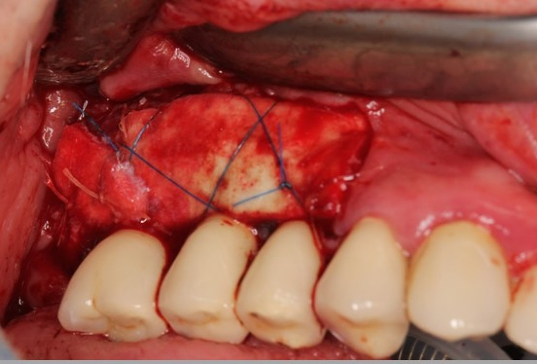 Augmentation of the maxillary attached gingiva-Stricker