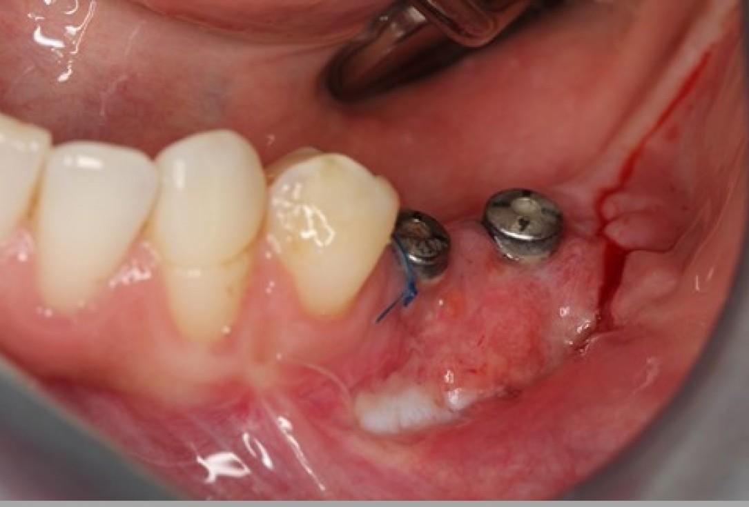 Augmentation of the mandibular attached gingiva- Stricker