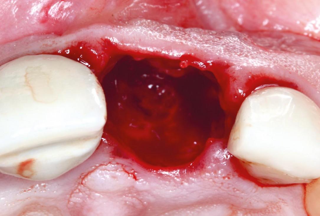 Socket augmentation using mucoderm®, maxgraft® and Straumann® Emdogain® - Dr. A. Puišys