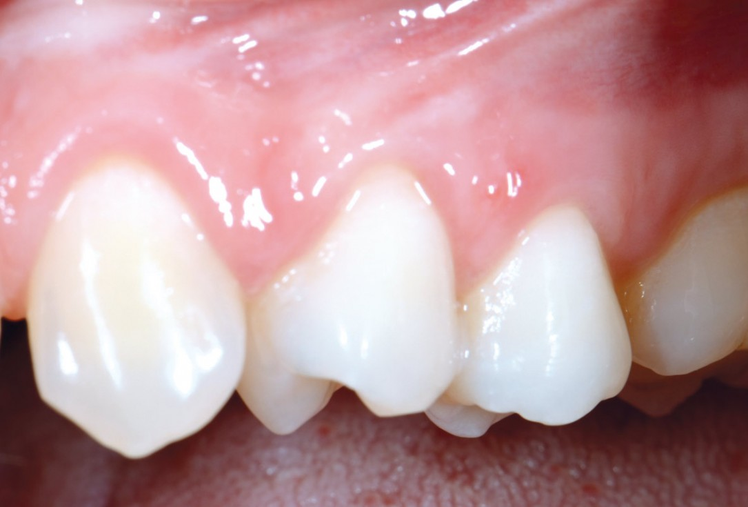Multiple recession coverage using MCAT in conjunction with mucoderm® and Emdogain® - Dr. D. Rakasevic