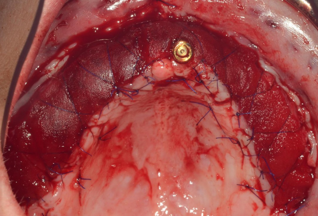 Full arch reconstruction with and lack of keratinized tissues-Mólnar/Windisch
