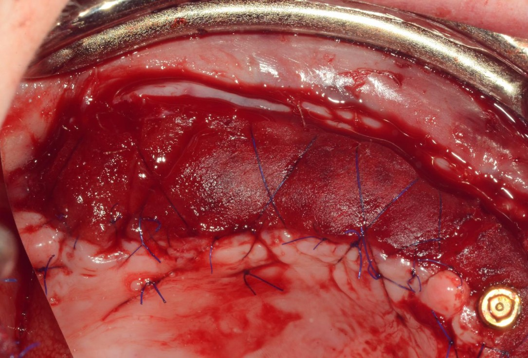 Full arch reconstruction with lack of keratinized tissues-Mólnar/Windisch