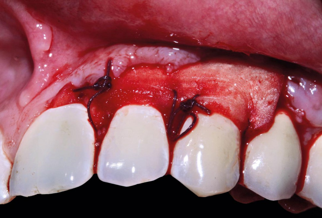 botiss mucoderm® for treatment of single gingival recession - Clinical case