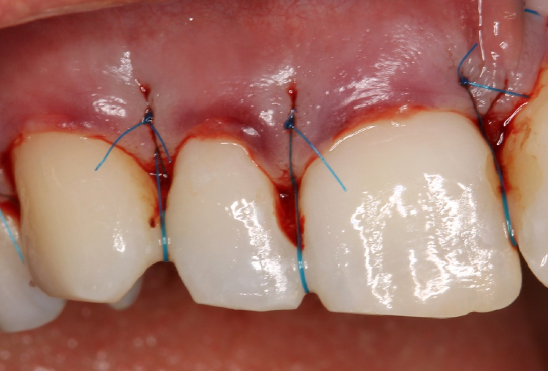 botiss mucoderm® for coverage of multiple recessions - clinical case by Dr. S. Stavar