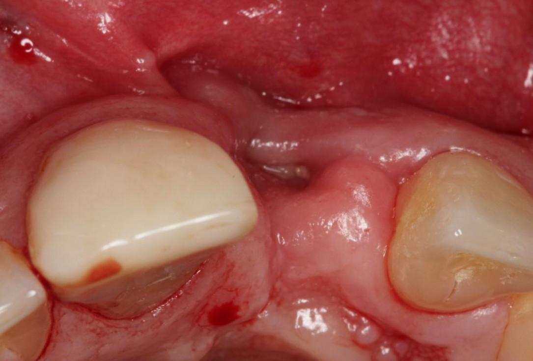 Augmentation of a traumatic soft tissue defect-Rathe