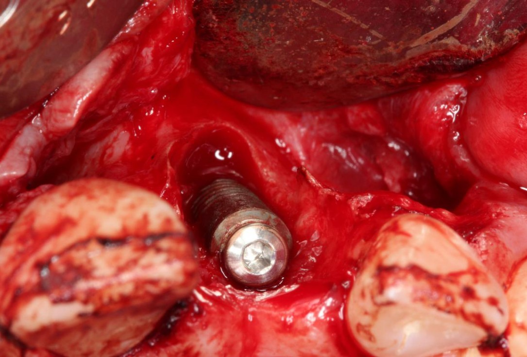 Augmentation of a traumatic soft tissue defect-Rathe