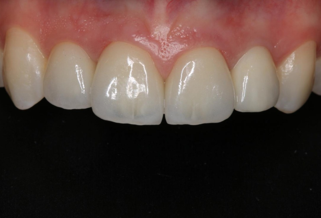 Soft tissue thickening at immediate implant placement with GBR-Puisys