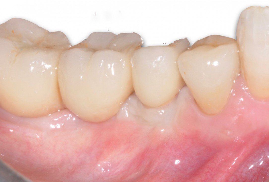 Peri-implant soft tissue augmentation for pontic-Frosecchi