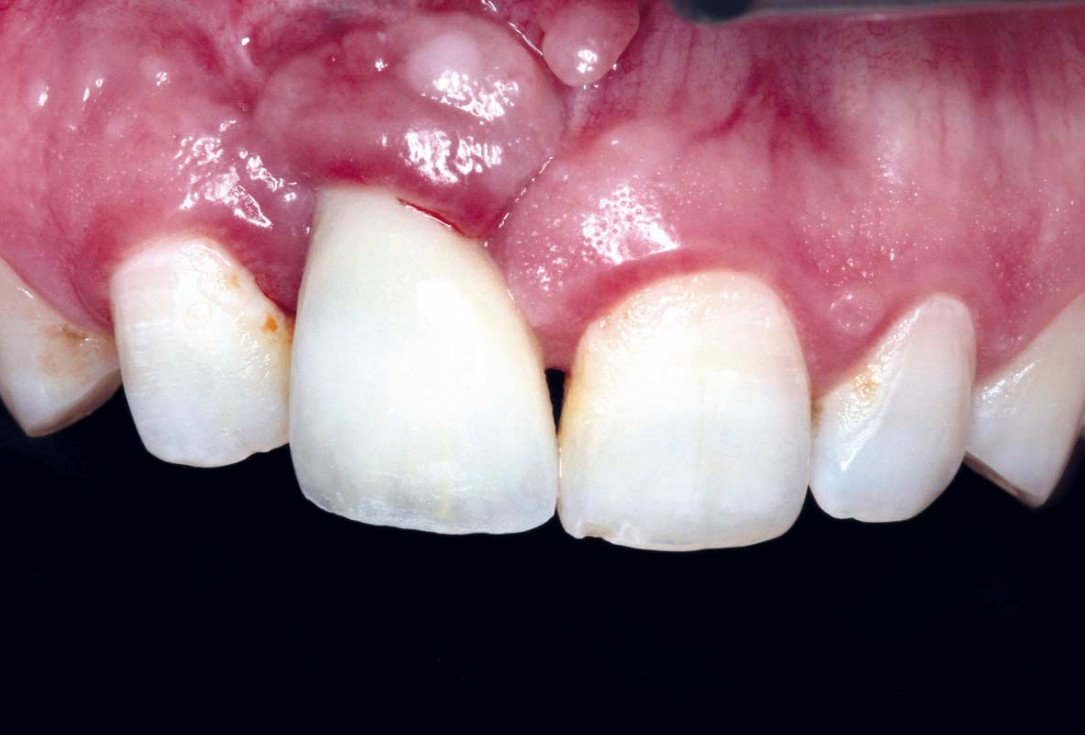 Treatment of a failed implant in the aesthetic zone - Dr. S. Pelekanos