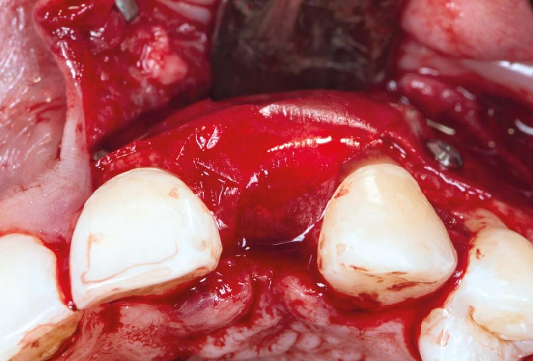 Horizontal ridge augmentation using cerabone® block, permamem® and Jason® membrane - Dr. P. Lázaro Calvo