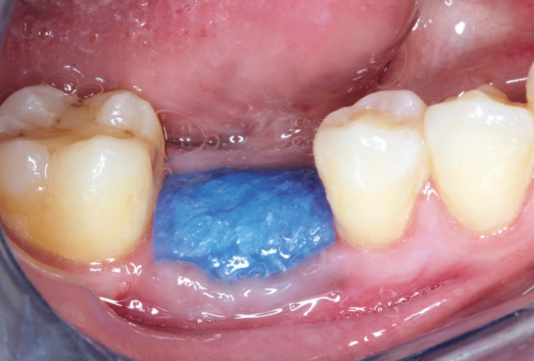 Covering of an immediately placed implant with permamem® - Prof. Z. Mazor