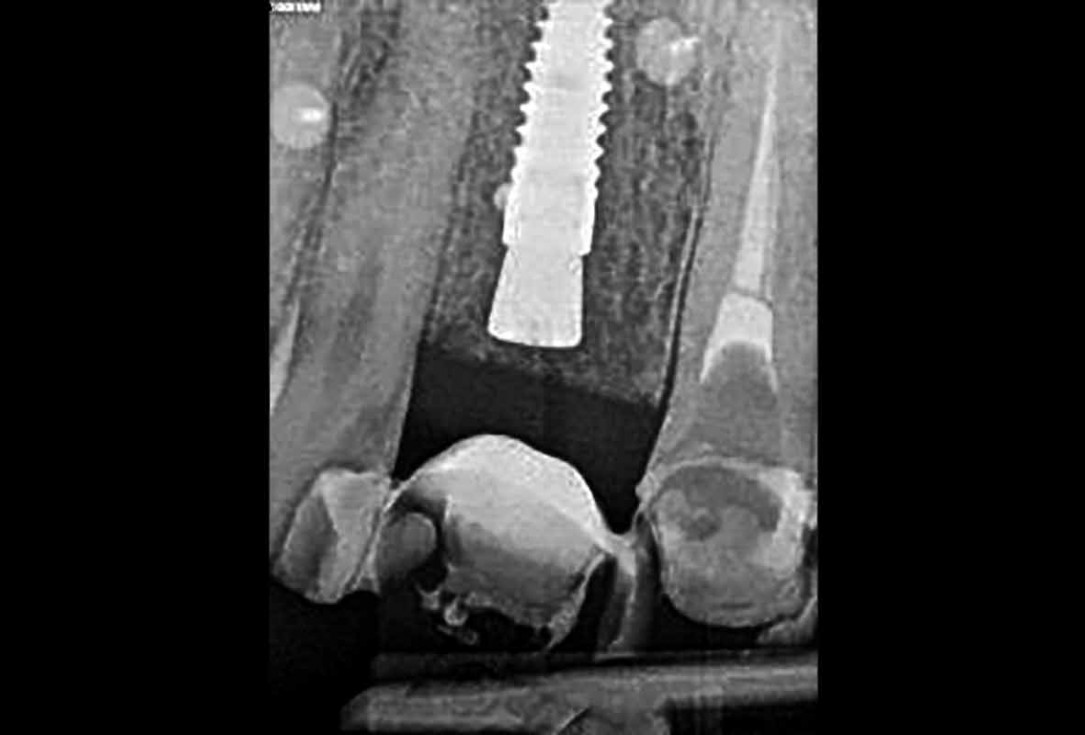 Implant placement and bone augmentation in the aesthetic zone using maxgraft® and permamem® - Dr. A. Puišys