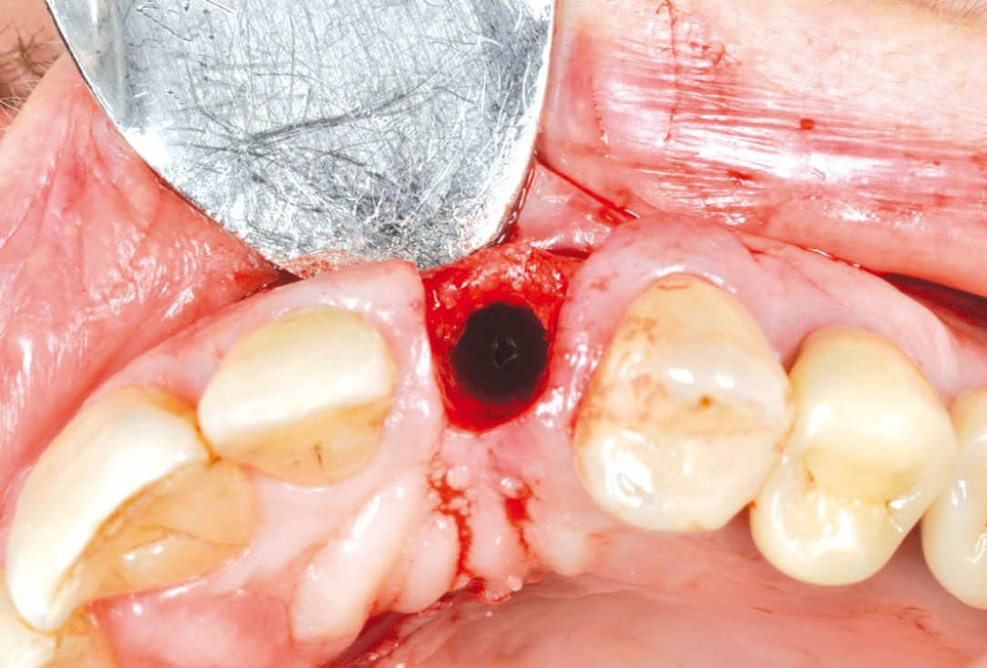 Ridge preservation and reconstruction of the buccal wall using permamem® and cerabone® - Dr. M. Steigmann