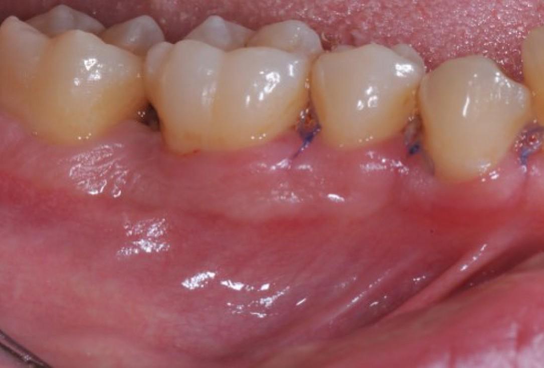 Deep intrabony defects treated using Straumann® Emdogain® - Dr. M. Stefanini
