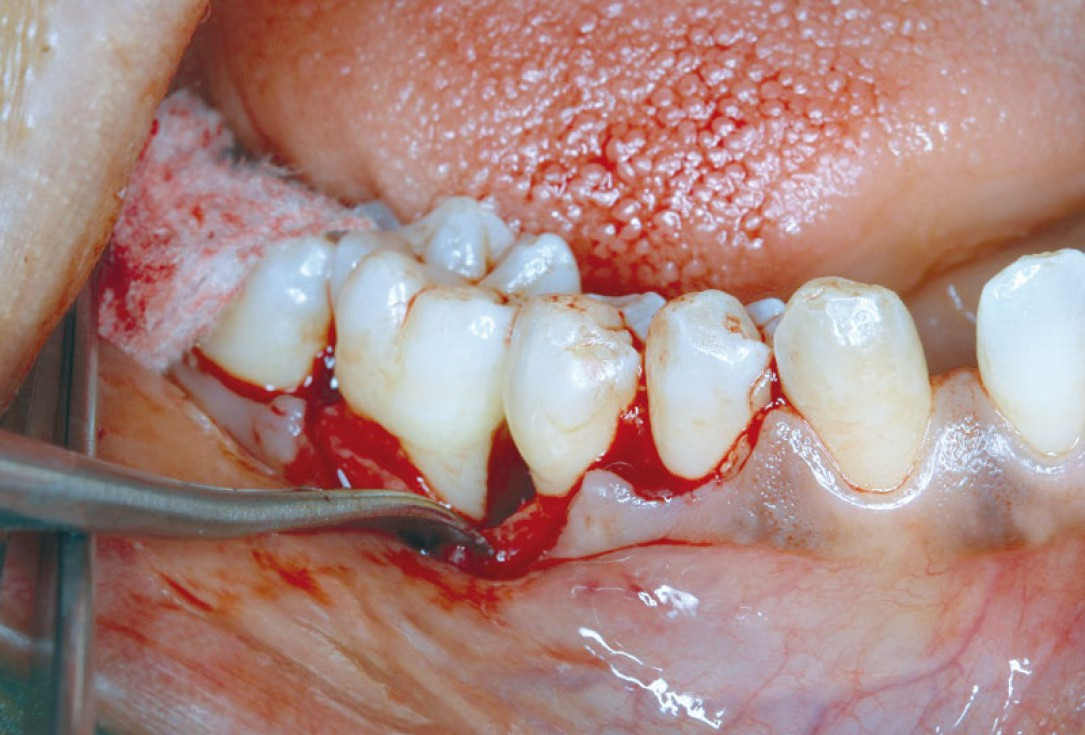 Regeneration at LR6 with cerabone® and collprotect® membrane using simple papilla preservation technique-2