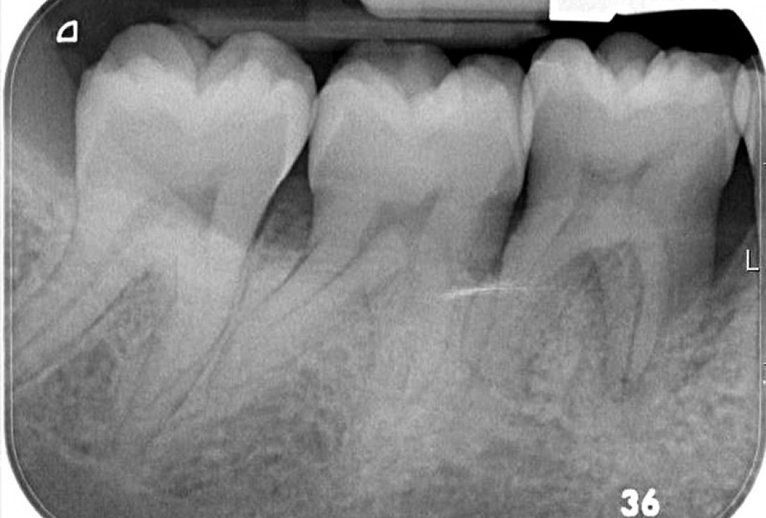 Regeneration at LR6 with cerabone® and collprotect® membrane using simple papilla preservation technique-6