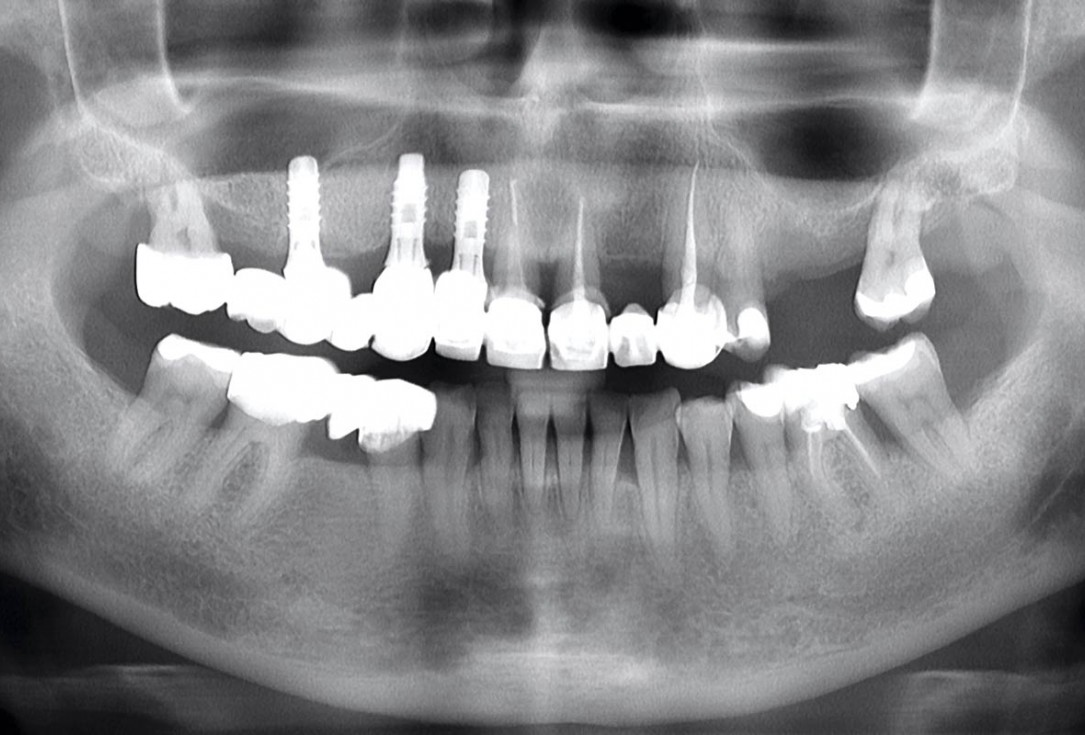 Immediate implant placement in the mandibular with collacone® max – Dr. D. Jelušić