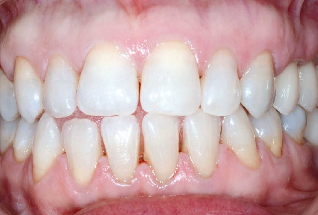 Multiple socket preservation in the maxilla with collacone® max – Dr. D. Jelušić