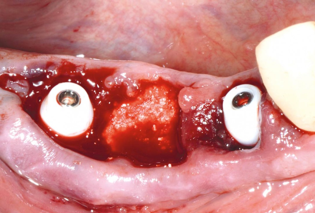 Multiple socket preservation in the mandibular with collacone® max – Dr. D. Jelušić