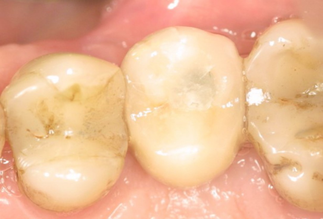 GBR at implant site - Dr. A. Nisio