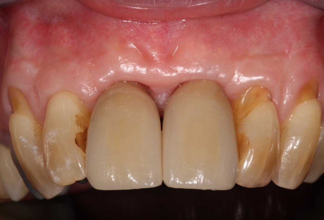 bone augmentation in the aesthetic zone with maxgraft® bonering -Dr. R. Cutts