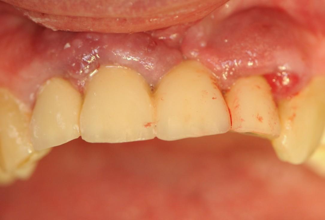 Long-term case: socket preservation and bone augmentation with two maxgraft® bonerings - Dr. B. Giesenhagen