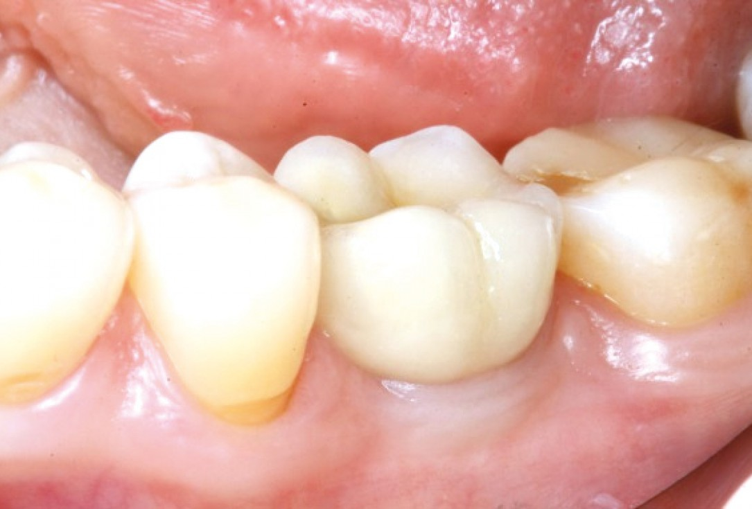 Mucosal thickening around bone level implants - Dr. A. Puisys