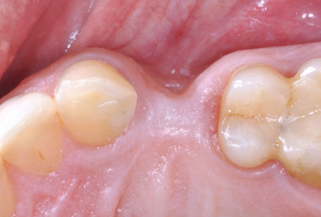 Treatment of a soft tissue deficiency with mucoderm® - Dr. F. Rojas-Vizcaya