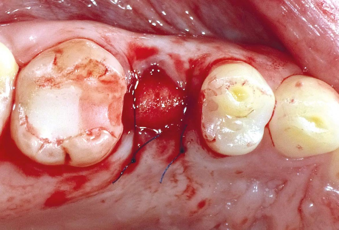 Socket seal with mucoderm® punch