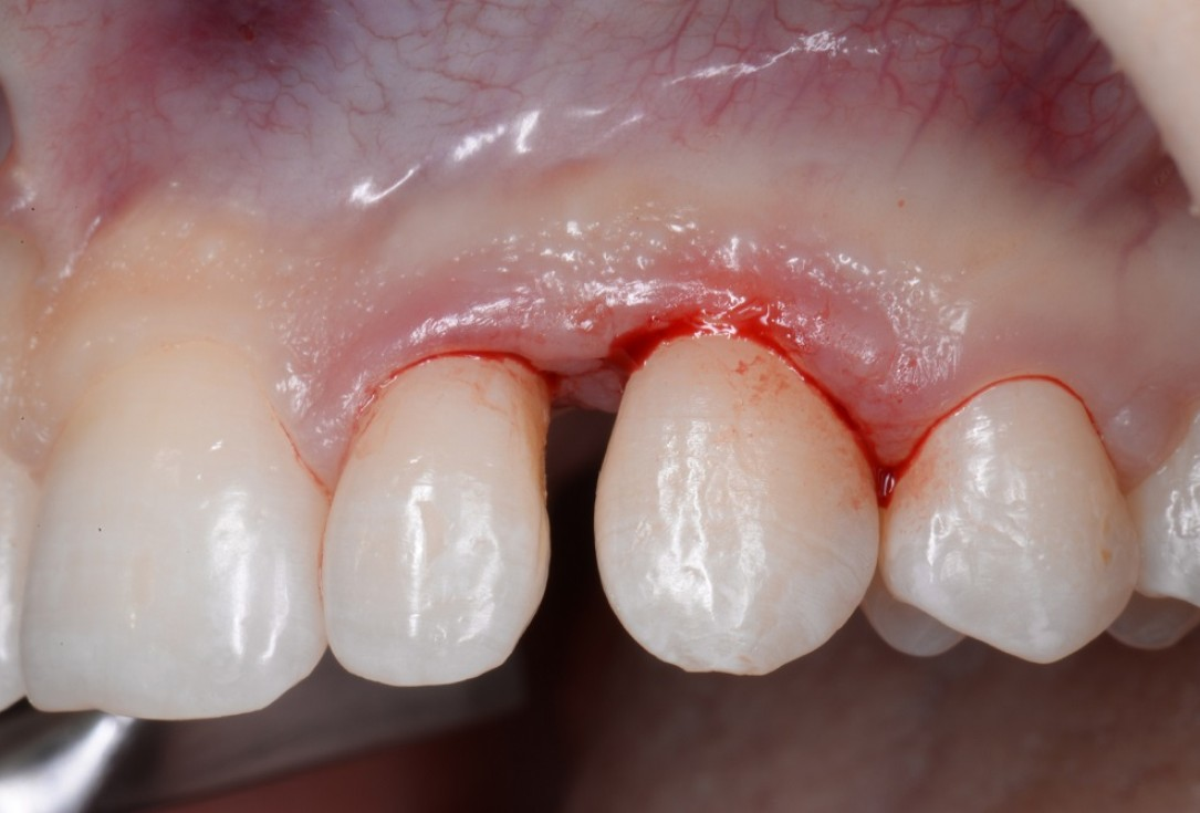 Non-contained intrabony defect treated by the MPPF in conjunction with cerabone® and Straumann® Emdogain® - Tunkel