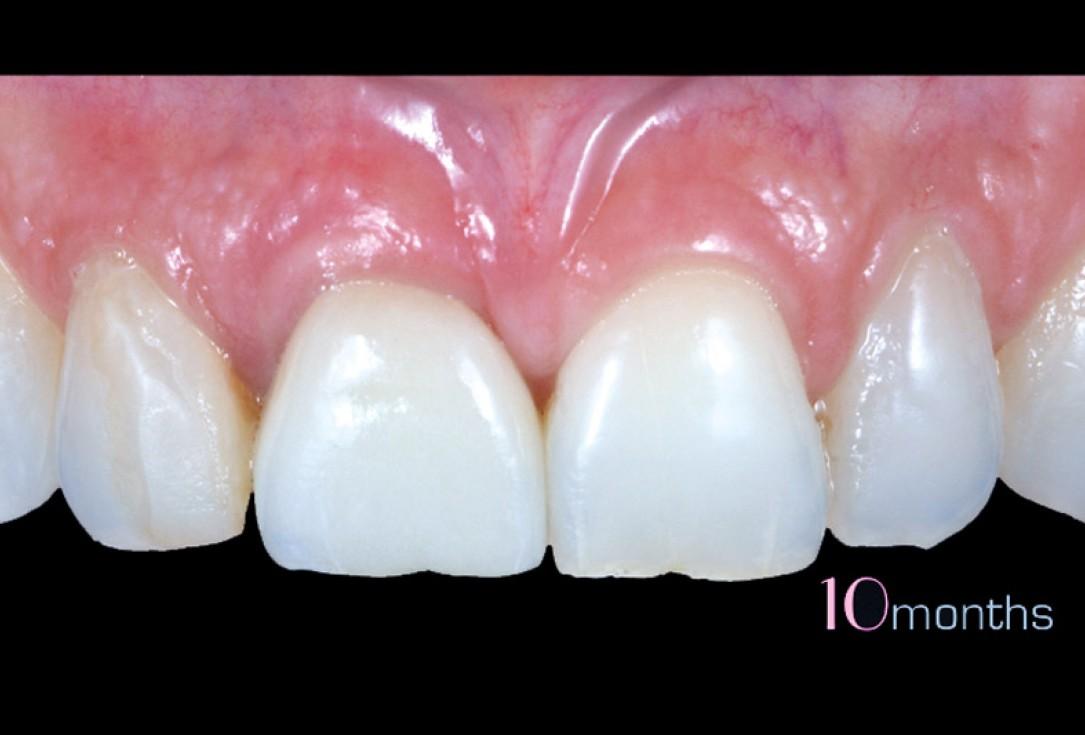 cerabone® and mucoderm® for immediacy in esthetic zone -Dr. M Motta