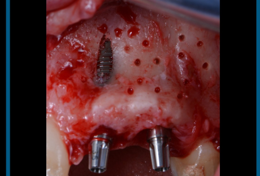 cerabone® and Jason® membrane for immediacy -Dr. M Motta