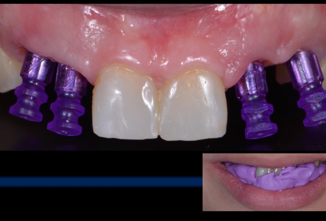 cerabone® and Jason® membrane for immediacy -Dr. M Motta