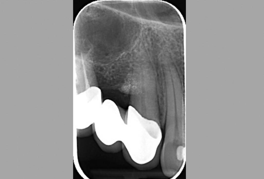 Intrabony defect treated using collprotect® membrane & cerabone® (1) - Cosgarea & Sculean