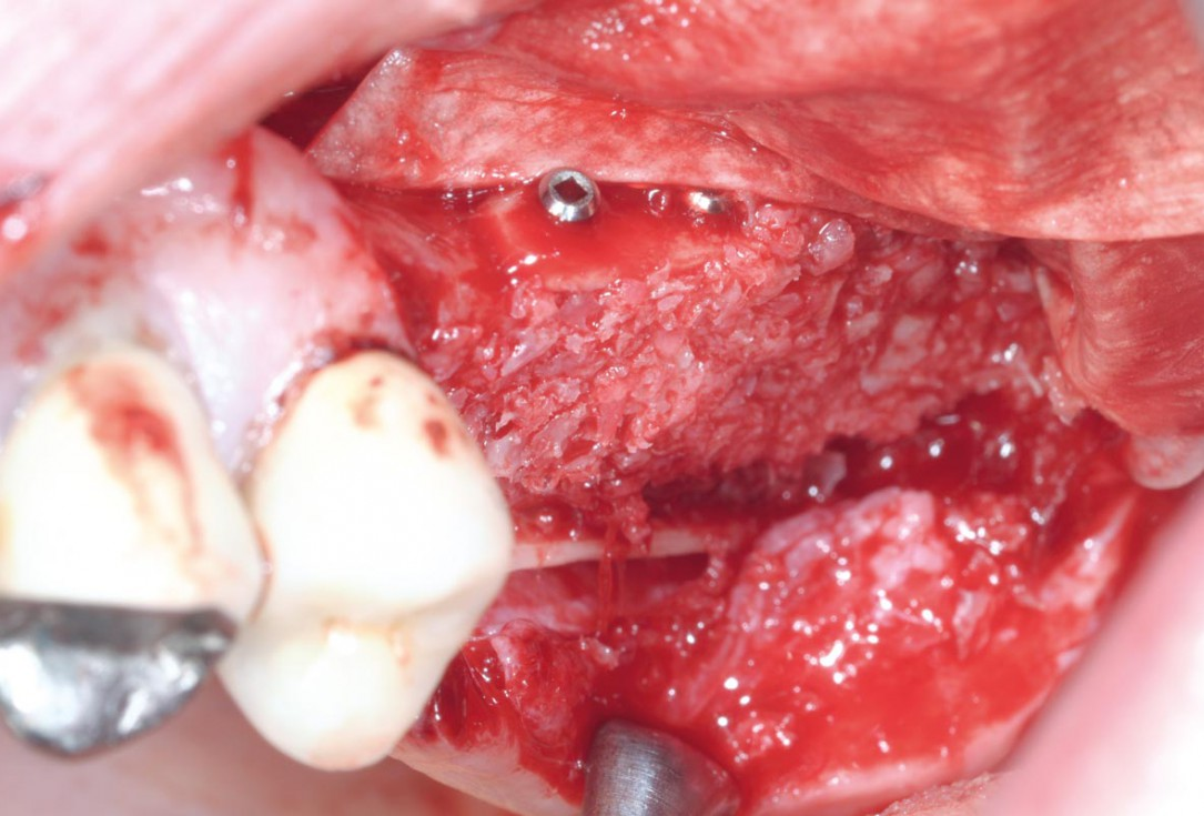 Intraoperative view after fixation of maxgraft® cortico with a micro screw system- Placement in parallel technique to obtain a horizontal and vertical augmentation