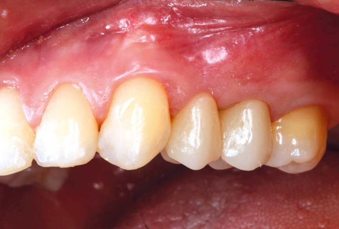 Ridge reconstruction with maxgraft® block in the posterior maxilla - Dr. A. Puišys