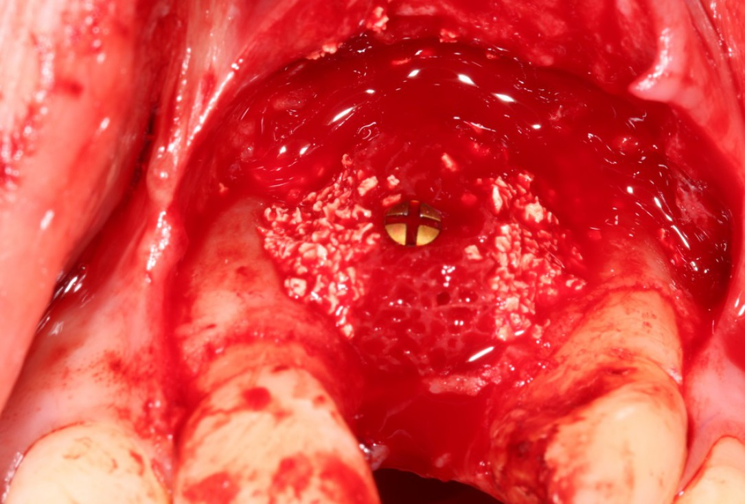 Block augmentation with maxgraft® in the maxilla - Dr. R. Cutts