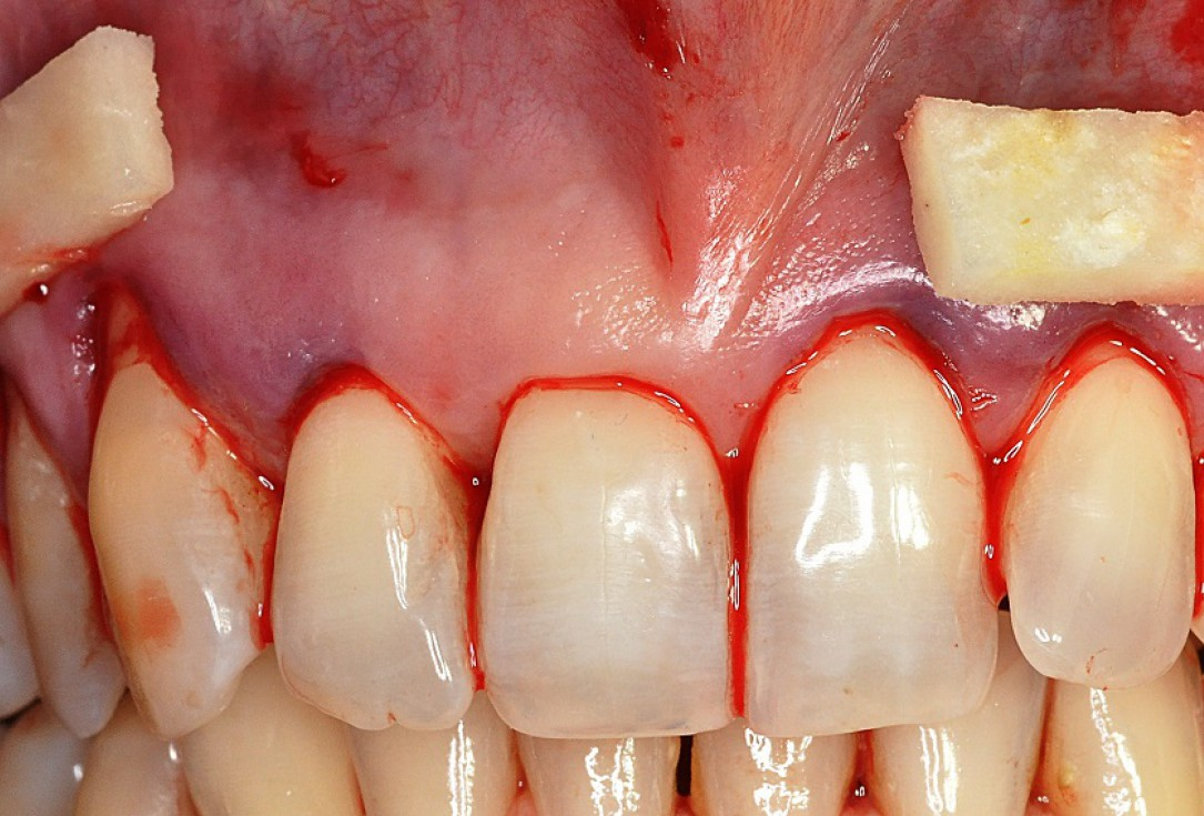 Multiple gingival recessions treated by MCAT in conjunction with mucoderm® and Straumann® Emdogain® - Hangyási