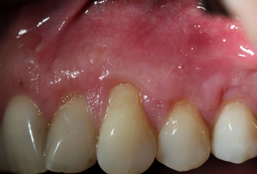 Multiple gingival recessions treated by MCAF in conjunction with mucoderm® - Hägewald