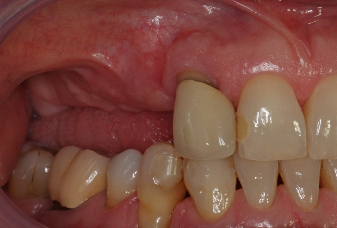 Advanced vertical augmentation in posterior maxilla with maxgraft® bonering -Dr. A. Isser