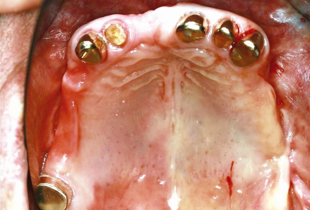 Three-dimensional augmentation in the mandible with maxgraft® cortico –  J. Kielhorn and Dr. S. Hölzer