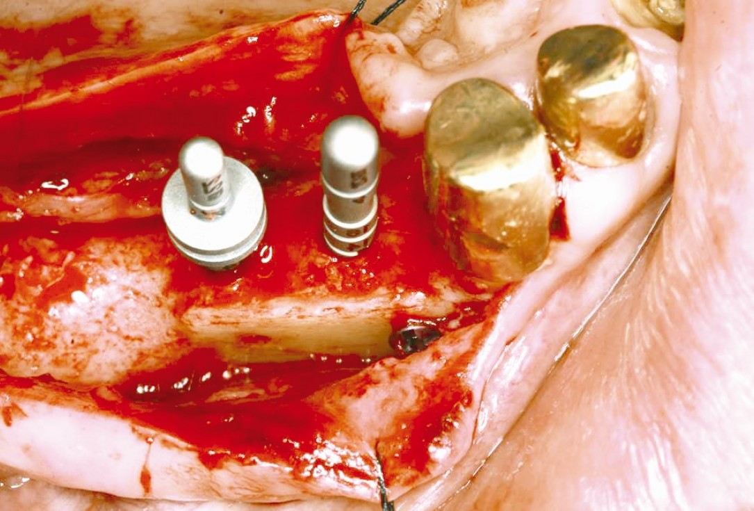 botiss maxgraft® cortico for 3D reconstruction mandible - Clinical case