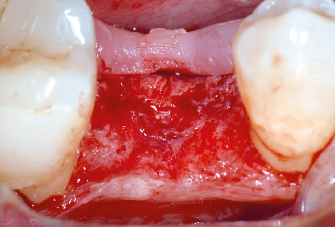 mucoderm® around single implant at second stage surgery